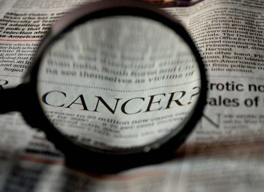 Opinion et causes de cancers
